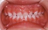 乳歯列期の矯正治療|矯正歯科 東海市 歯科