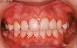 混合歯列期の矯正治療|矯正歯科 東海市 歯科