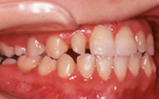 永久歯列期の矯正治療|矯正歯科 東海市 歯科