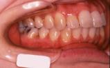 成人期の矯正歯科治療|矯正歯科 東海市 歯科