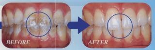 PMTCの効果 矯正歯科 東海市 歯科