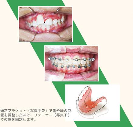 通常ブラケット(写真中央)で歯や顎の位置を調整したあと、リテーナー(写真下)で位置を固定します。